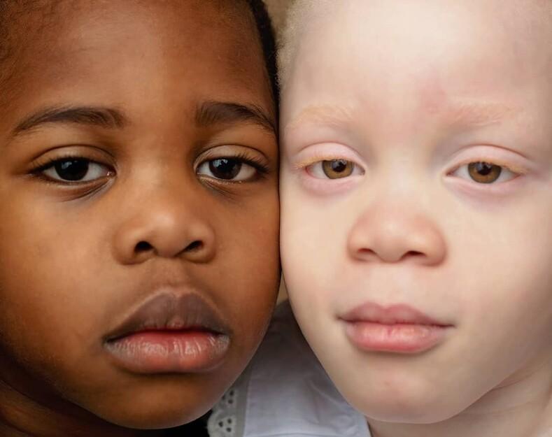 Близнецы с разным цветом кожи: в роддоме мать из Нигерии подумала, что ей дают чужого ребенка