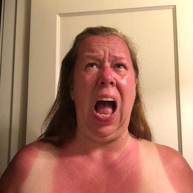 Ровный загар? Не, не слышали: фото, доказывающие, что отдых под солнцем может сотворить такую дичь, что от слез спасет только самоирония
