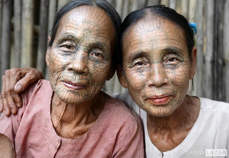 Вся жизнь с татуировкой на лице: их уродовали, чтобы спасти