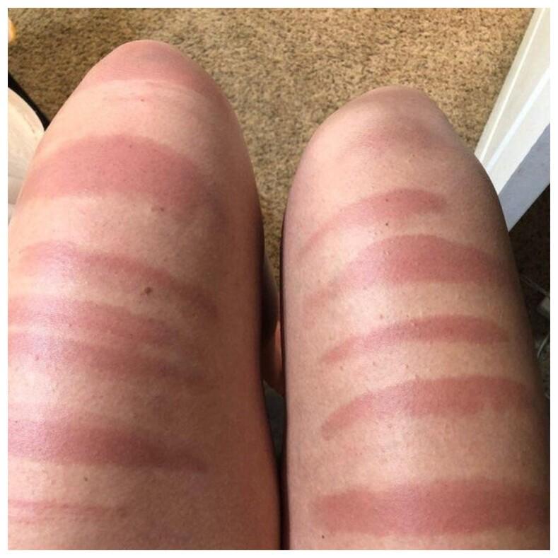 Пользователи не постеснялись показать свой худший загар, и это та еще катастрофа: 10 фотомотиваторов, чтобы всегда носить с собой солнцезащитный крем