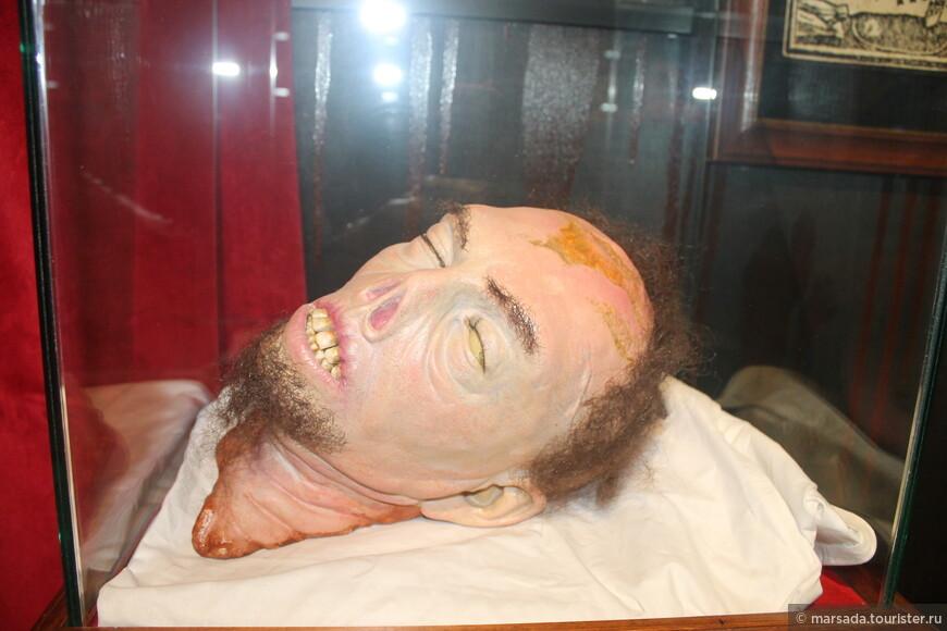 Еще истории о вампирах могли появиться под влиянием редкого заболевания, называемого «порфирия». Она встречается там,  где возможно имело место близкородственное размножение. Вообще-то это просто нарушение пигментного обмена, но симптомами являются упадок сил, побледнение кожи и светобоязнь. Затем кожа истончается, слизистая десен и внутренней части губ лопается, начинает кровоточить и обнажает корни зубов.